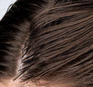 Gegen fettiges Haar helfen sowohl Hausmittel als auch spezielle Pflegeprodukte.
